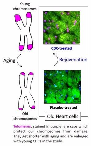 Implantar células madre cardiacas de jóvenes en corazones de adultos para regenerarlos (CEDARS-SINAI)